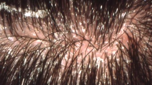 Hair flakes + inflammation