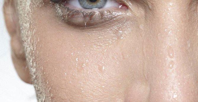 Vous avez une peau hypersensible ? Découvrez comment faire face à ce problème