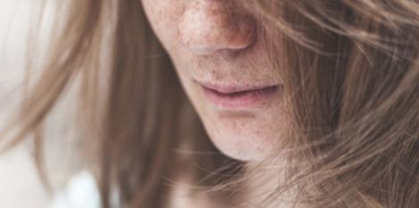 Taches brunes : Les astuces pour les masquer en un clin d'oeil