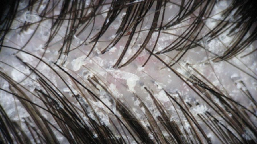 Dercos Dandruff - Detail van hoofdhuid met seborroïsche dermatitis en zichtbare haarschilfers