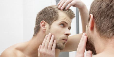 Kapsels voor kalende mannen, hoe je er geweldig uit kunt zien Hoe je er geweldig uit kunt zien, ook met minder haar